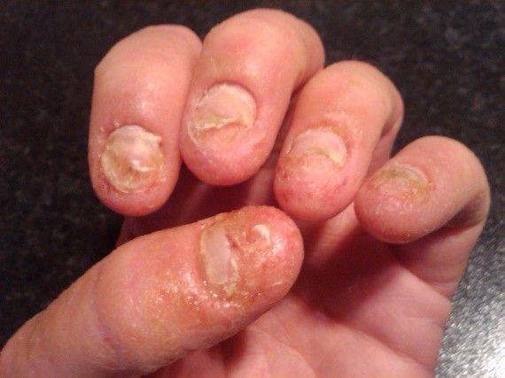 faux ongles a la maison